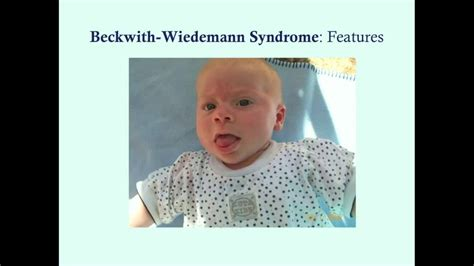 Beckwith-Wiedemann Syndrome - CRASH! Medical Review Series